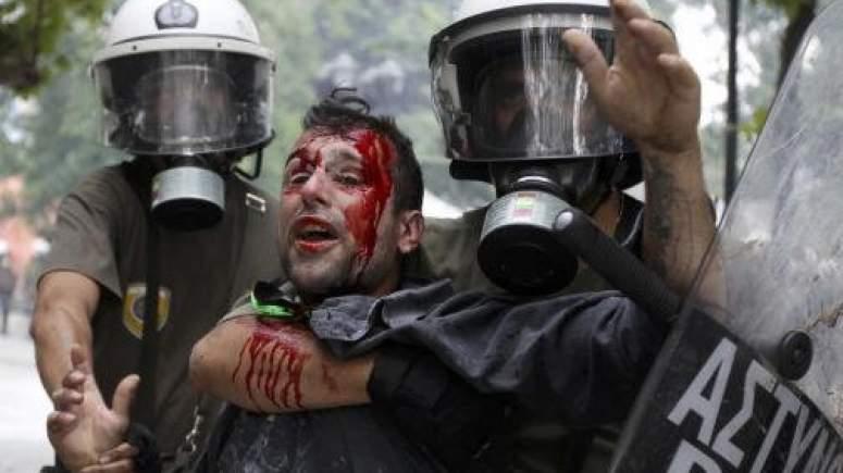 Δικάζεται (μετά από 8 χρόνια) η αγωγή δημοσιογράφου που τραυματίστηκε από τα ΜΑΤ