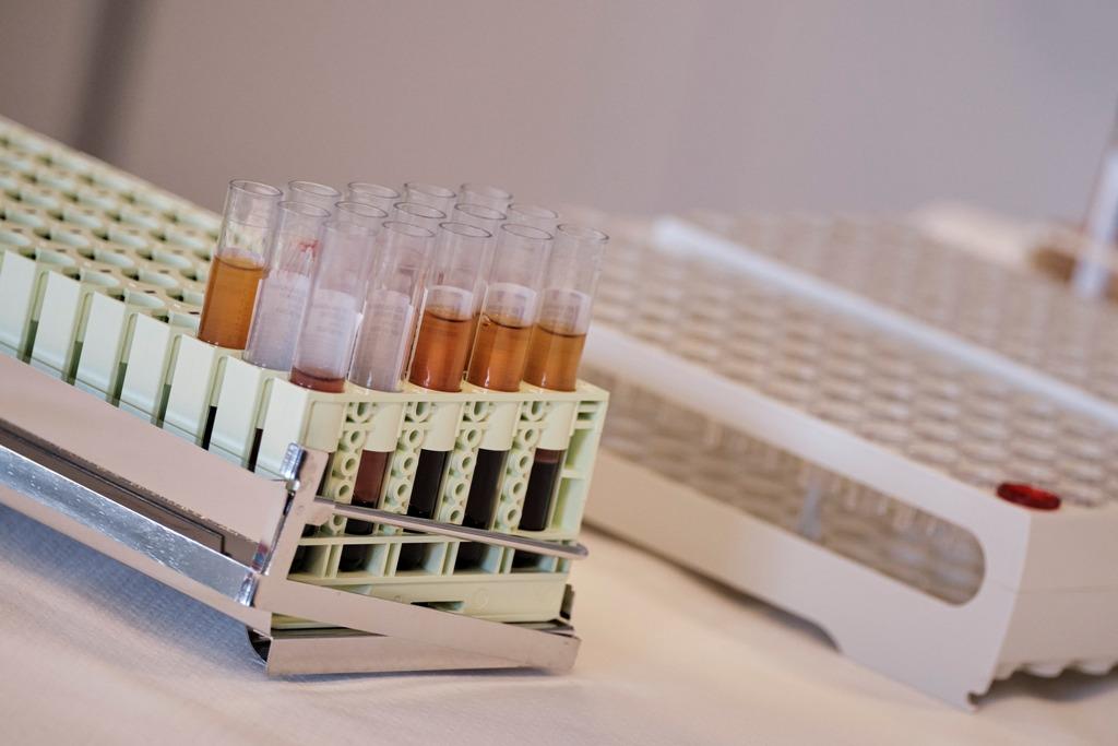 Νομπελίστας για τον HIV: «Μόνο προϊόν εργαστηρίου μπορεί να είναι ο κοροναϊός»