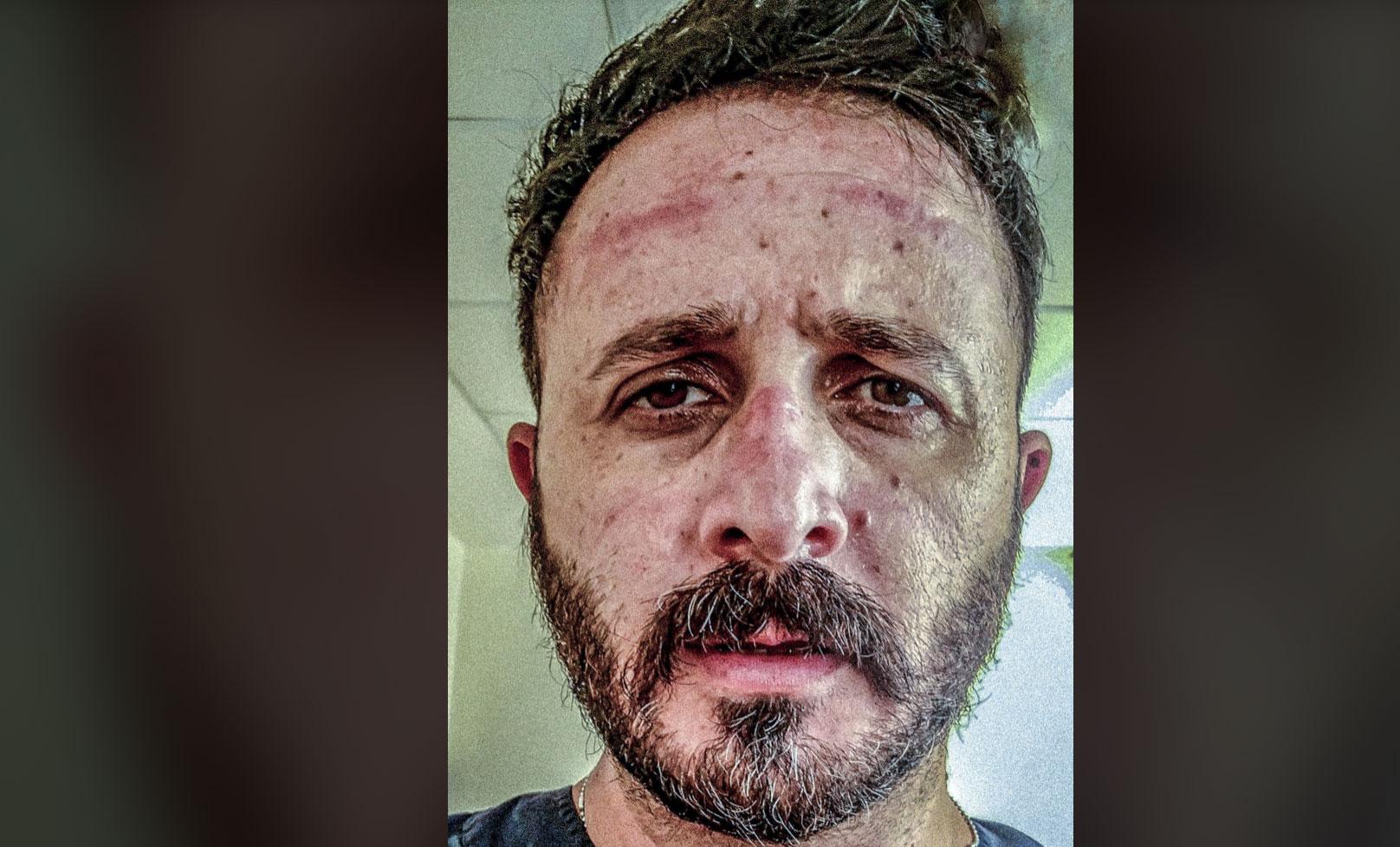 Γιατρός του ΠΑΓΝΗ: Γκρινιάζετε για τις μάσκες κι εμείς δεν έχουμε!