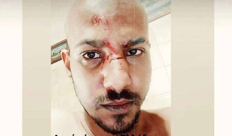 Σάλος στη Ναύπακτο από ομοφοβική επίθεση σε νεαρό – Ξεκίνησε έρευνα η ΕΛΑΣ για τον άγριο ξυλοδαρμό – BINTEO