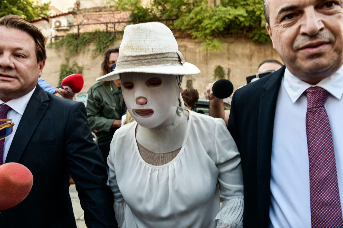 Δίκη επίθεσης με βιτριόλι: Συγκλονιστική η εικόνα της Ιωάννας - BINTEO